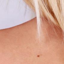 Odstranite madeže in manjše kožne spremembe