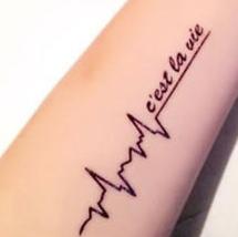 Lasersko odstranjevanje tetovaže