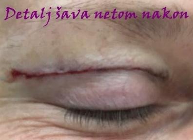 Podizanje kapaka – blefaroplastika